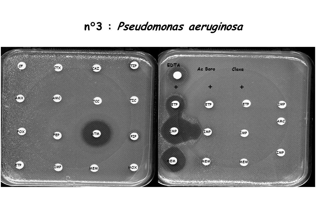 n°3 : Pseudomonas aeruginosa CF CTX TZP AMX FEP FOX TIC AMC PIP CAZ TCC ATM IMP ETP MOX MEM IMP ETP MEM IMP ETP MEM IMP ETP MEM AMC IMP EDTA + ++ Ac B