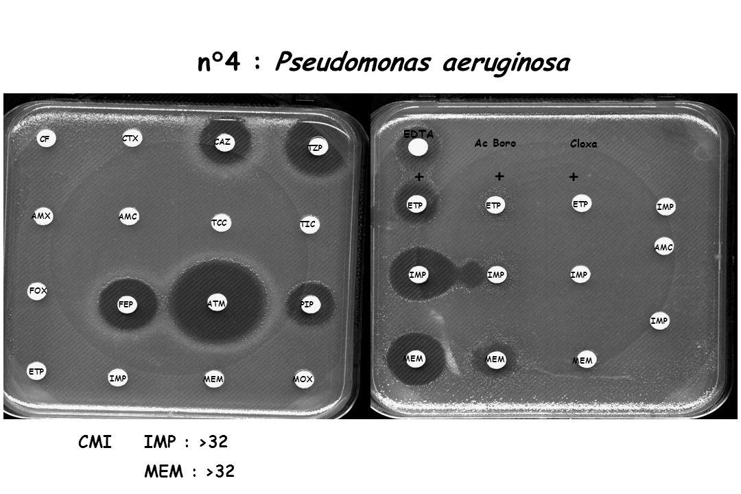 n°4 : Pseudomonas aeruginosa CF CTX TZP AMX FEP FOX TIC AMC PIP CAZ TCC ATM IMP ETP MOX MEM IMP ETP MEM IMP ETP MEM IMP ETP MEM AMC IMP EDTA + ++ Ac B