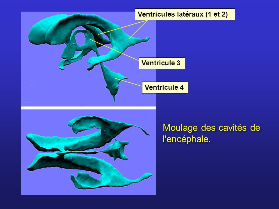 Moulage des cavités de l'encéphale. Ventricules latéraux (1 et 2) Ventricule 3 Ventricule 4