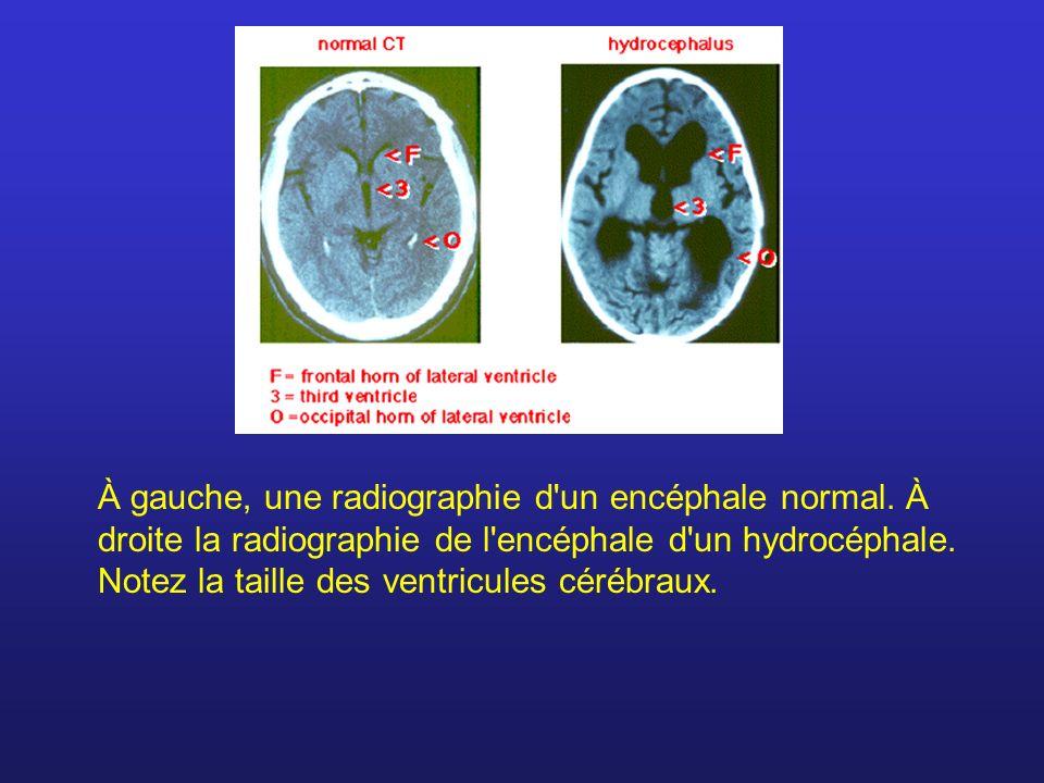 À gauche, une radiographie d'un encéphale normal. À droite la radiographie de l'encéphale d'un hydrocéphale. Notez la taille des ventricules cérébraux