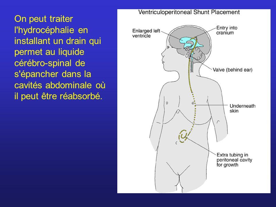 On peut traiter l'hydrocéphalie en installant un drain qui permet au liquide cérébro-spinal de s'épancher dans la cavités abdominale où il peut être r