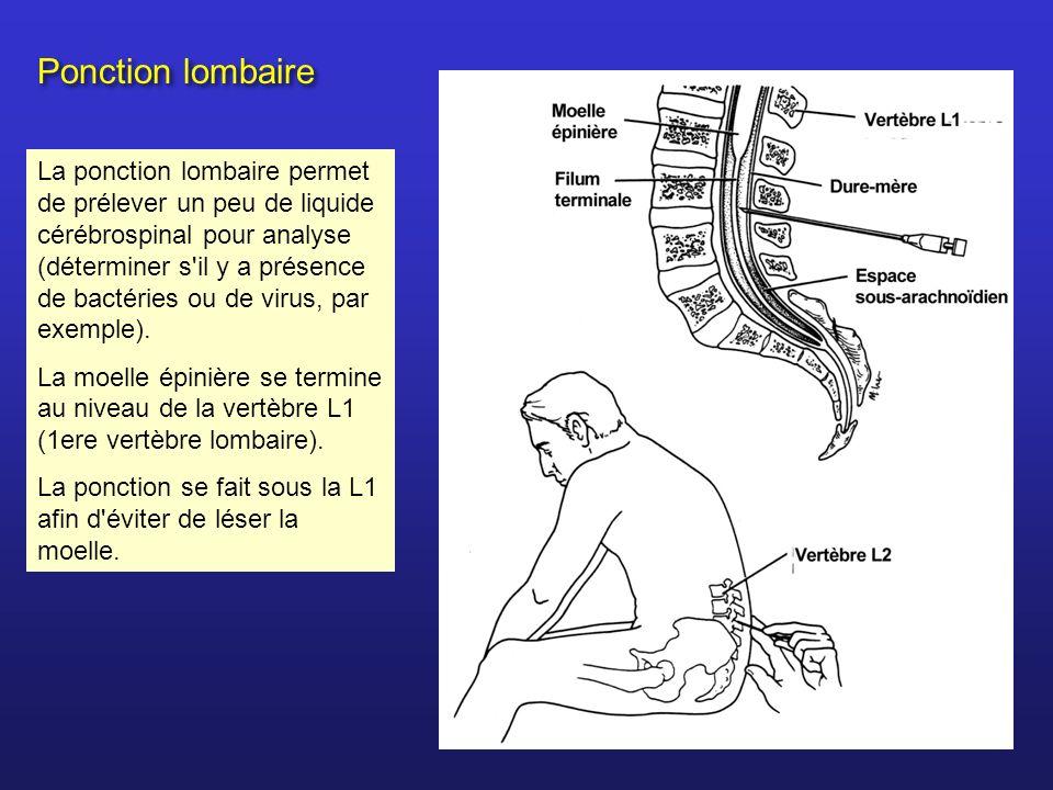 Ponction lombaire La ponction lombaire permet de prélever un peu de liquide cérébrospinal pour analyse (déterminer s'il y a présence de bactéries ou d