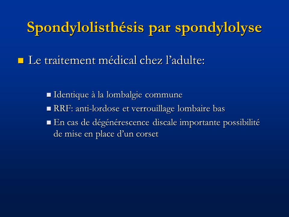 Spondylolisthésis par spondylolyse Le traitement médical chez ladulte: Le traitement médical chez ladulte: Identique à la lombalgie commune Identique
