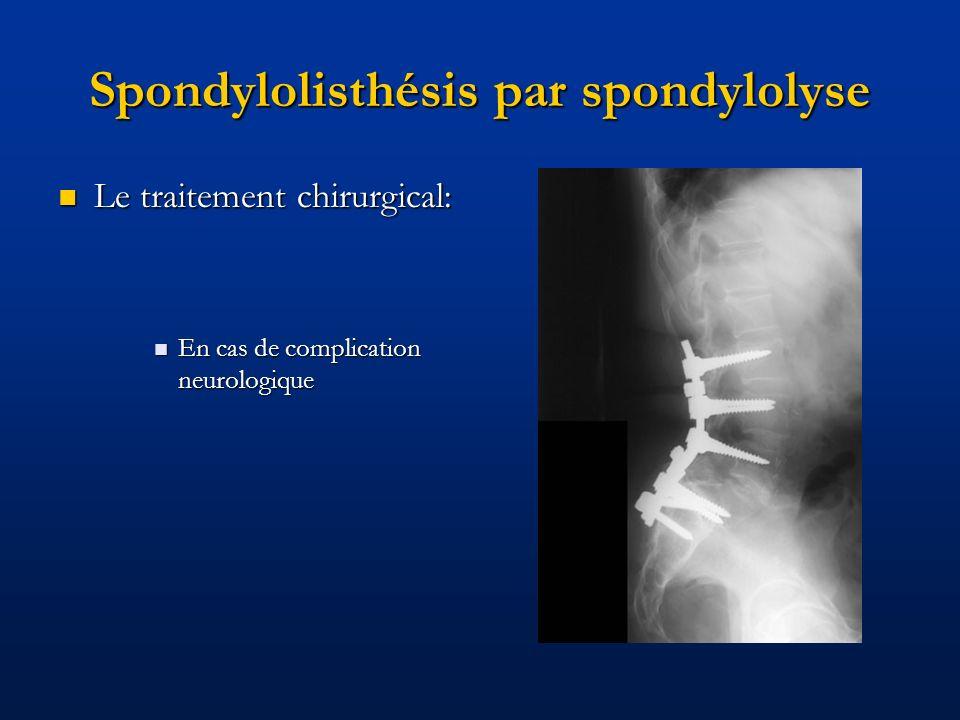 Spondylolisthésis par spondylolyse Le traitement chirurgical: Le traitement chirurgical: En cas de complication neurologique En cas de complication ne