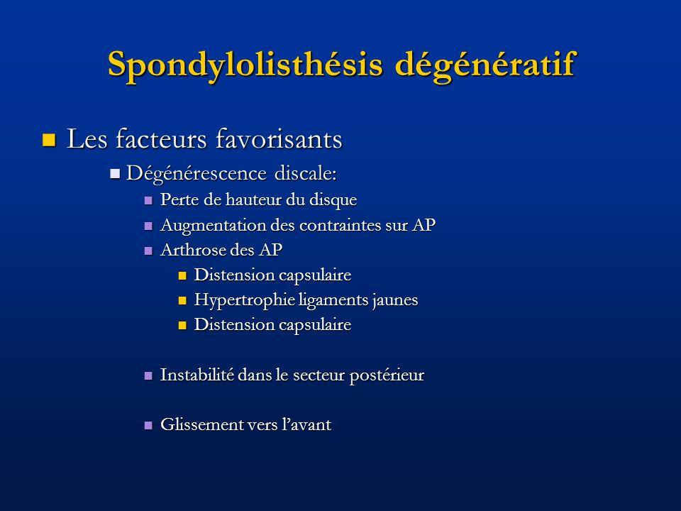 Spondylolisthésis dégénératif Les facteurs favorisants Les facteurs favorisants Dégénérescence discale: Dégénérescence discale: Perte de hauteur du di