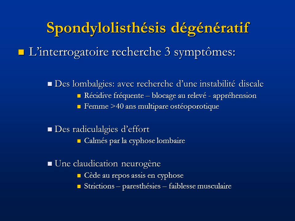 Spondylolisthésis dégénératif Linterrogatoire recherche 3 symptômes: Linterrogatoire recherche 3 symptômes: Des lombalgies: avec recherche dune instab