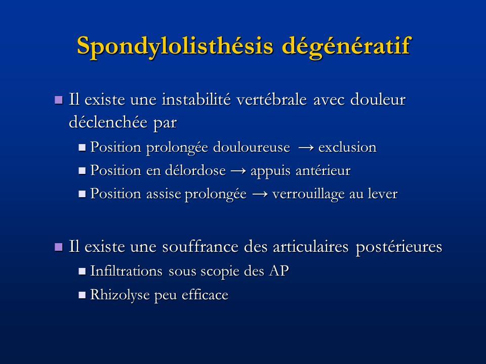 Spondylolisthésis dégénératif Il existe une instabilité vertébrale avec douleur déclenchée par Il existe une instabilité vertébrale avec douleur décle