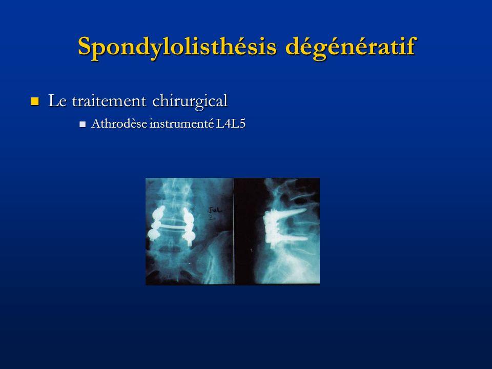 Spondylolisthésis dégénératif Le traitement chirurgical Le traitement chirurgical Athrodèse instrumenté L4L5 Athrodèse instrumenté L4L5