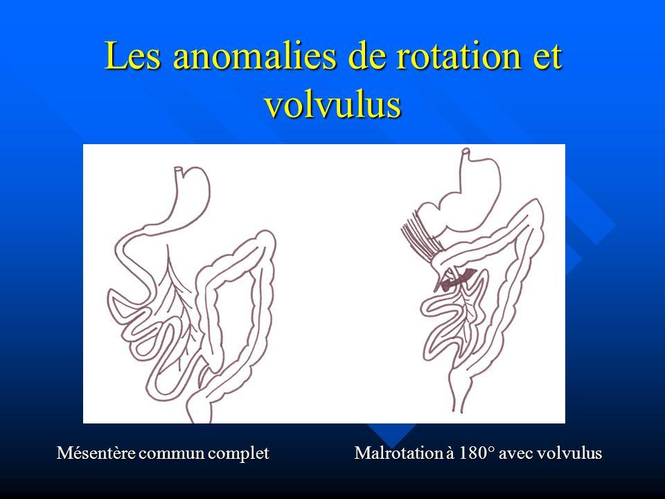 Les anomalies de rotation et volvulus Mésentère commun complet Malrotation à 180° avec volvulus