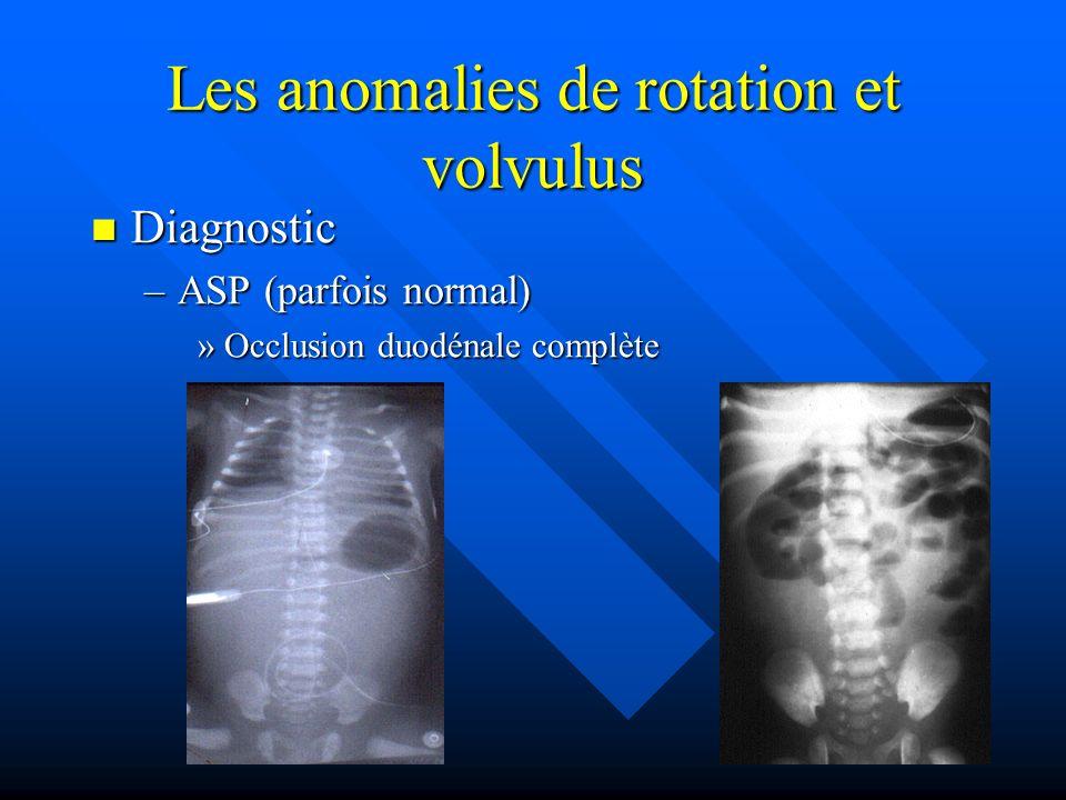 Les anomalies de rotation et volvulus Diagnostic Diagnostic –ASP (parfois normal) »Occlusion duodénale complète