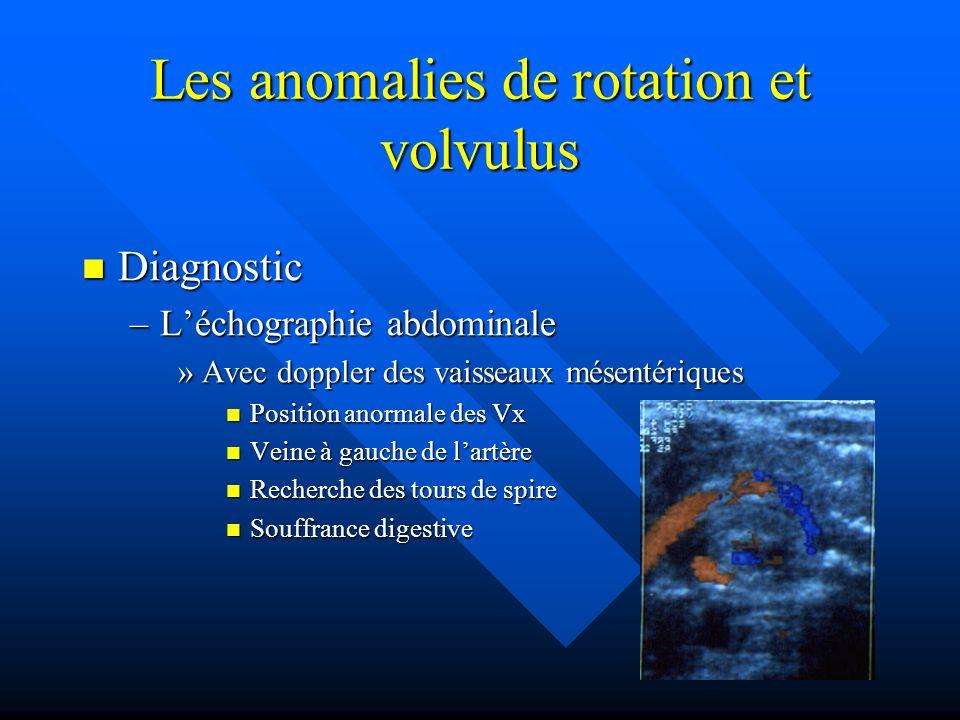 Les anomalies de rotation et volvulus Diagnostic Diagnostic –Léchographie abdominale »Avec doppler des vaisseaux mésentériques Position anormale des V