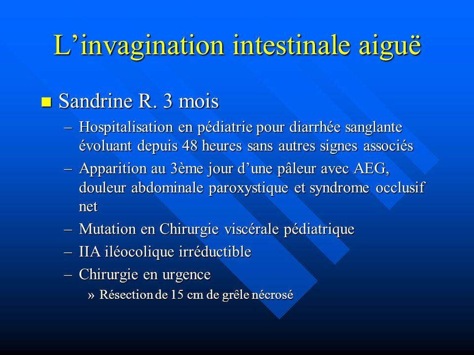 Linvagination intestinale aiguë Sandrine R. 3 mois Sandrine R. 3 mois –Hospitalisation en pédiatrie pour diarrhée sanglante évoluant depuis 48 heures