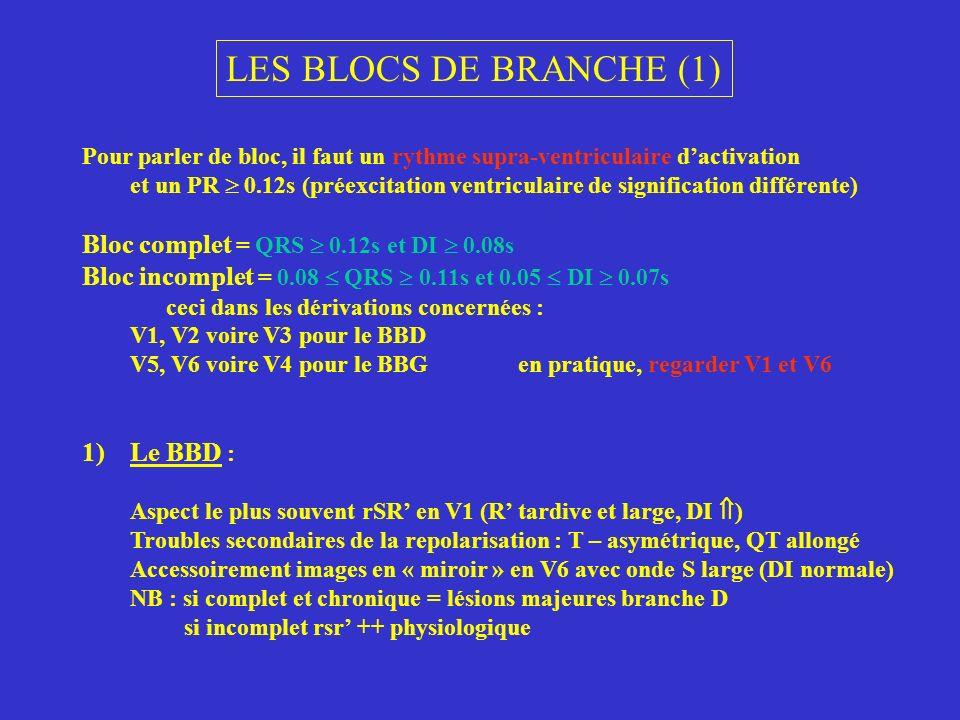 LES BLOCS DE BRANCHE (1) Pour parler de bloc, il faut un rythme supra-ventriculaire dactivation et un PR 0.12s (préexcitation ventriculaire de signifi