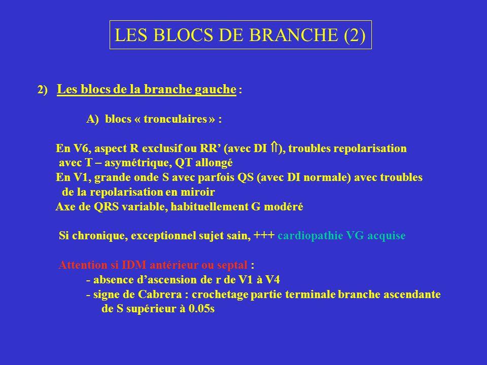 LES BLOCS DE BRANCHE (2) 2) Les blocs de la branche gauche : A) blocs « tronculaires » : En V6, aspect R exclusif ou RR (avec DI ), troubles repolaris