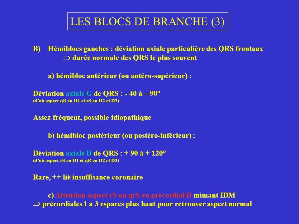 LES BLOCS DE BRANCHE (3) B)Hémiblocs gauches : déviation axiale particulière des QRS frontaux durée normale des QRS le plus souvent a) hémibloc antéri
