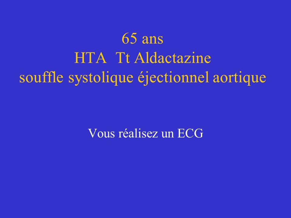 65 ans HTA Tt Aldactazine souffle systolique éjectionnel aortique Vous réalisez un ECG