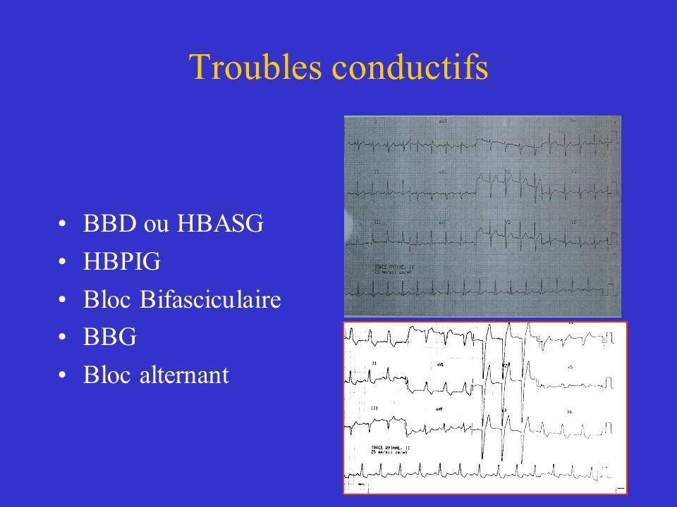 Troubles conductifs BBD ou HBASG HBPIG Bloc Bifasciculaire BBG Bloc alternant