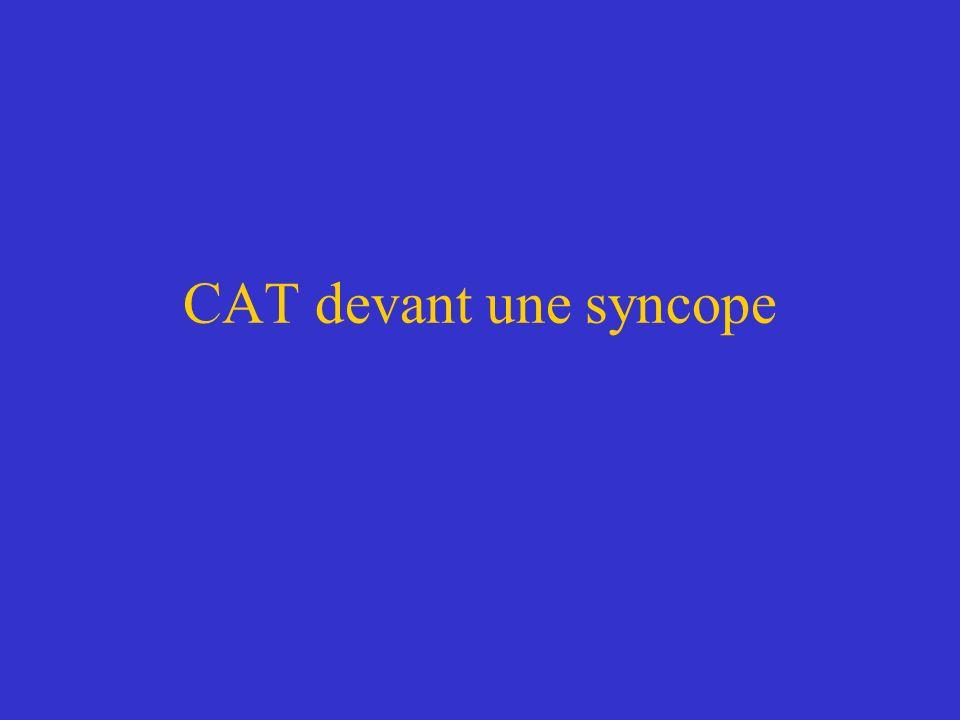 CAT devant une syncope
