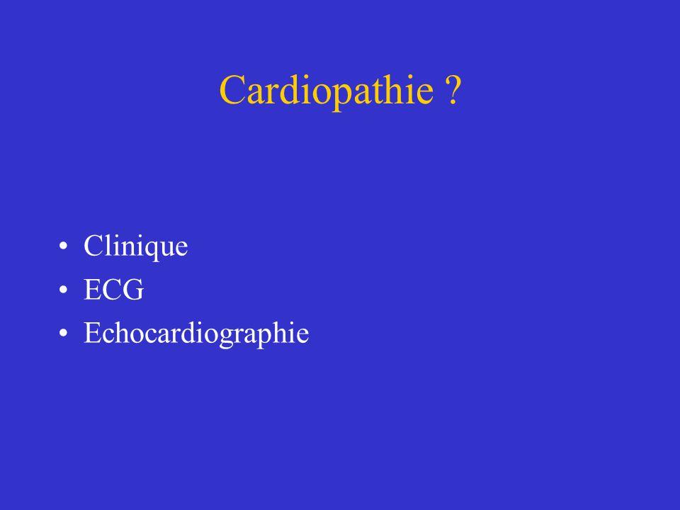 Cardiopathie ? Clinique ECG Echocardiographie