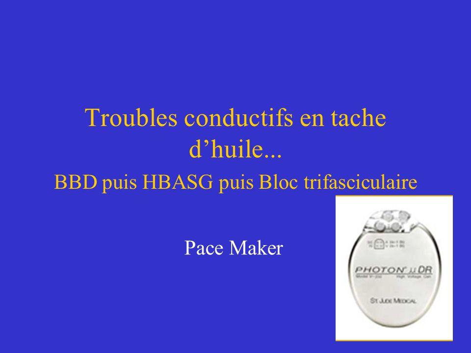 Troubles conductifs en tache dhuile... BBD puis HBASG puis Bloc trifasciculaire Pace Maker