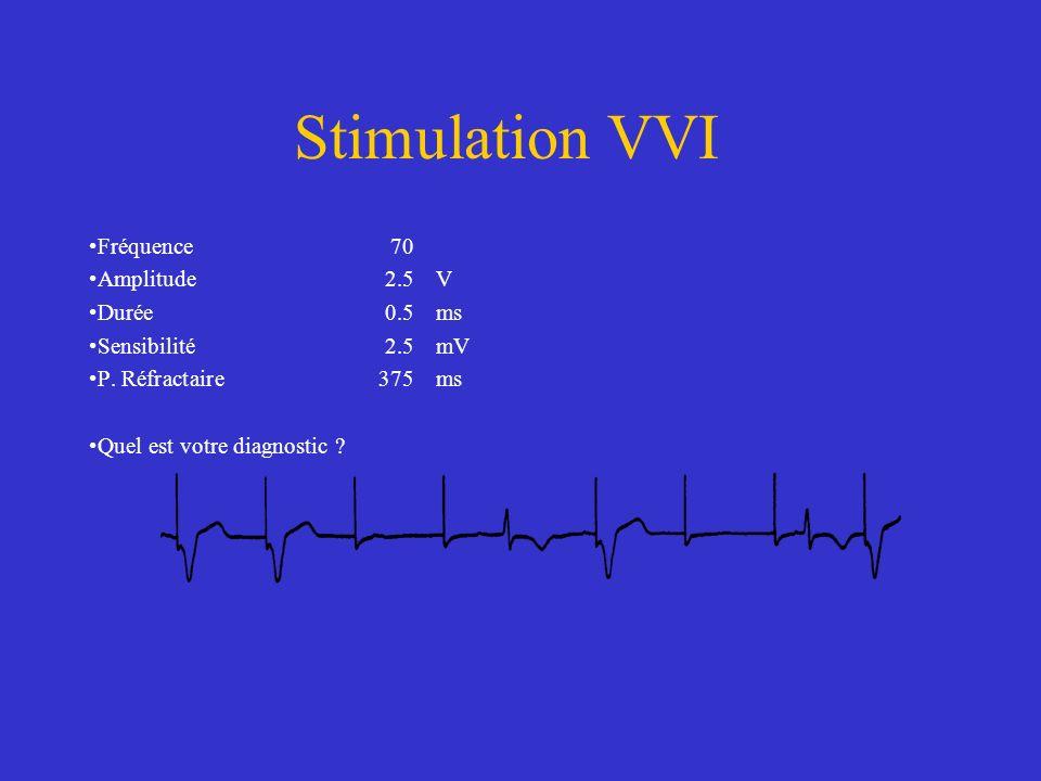 Stimulation VVI Fréquence70 Amplitude2.5V Durée0.5ms Sensibilité2.5mV P. Réfractaire375ms Quel est votre diagnostic ?