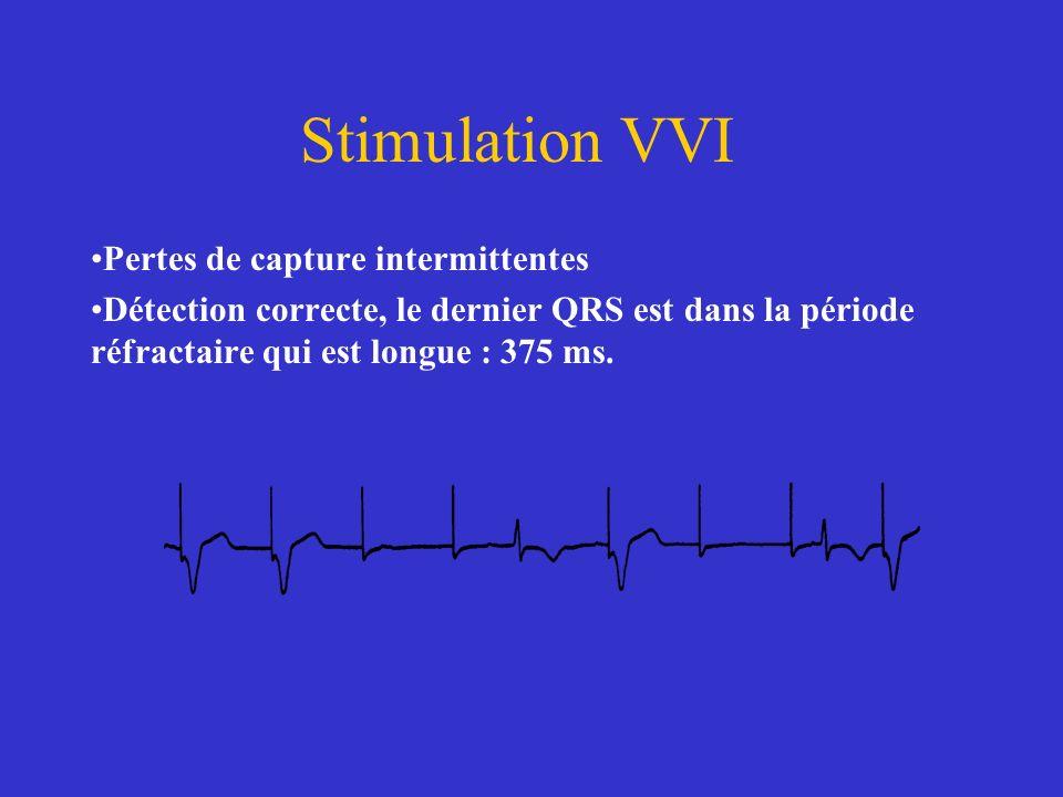 Stimulation VVI Pertes de capture intermittentes Détection correcte, le dernier QRS est dans la période réfractaire qui est longue : 375 ms.