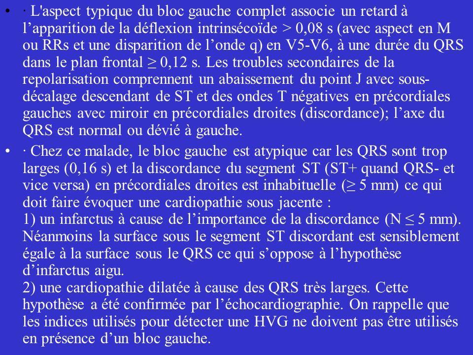· L'aspect typique du bloc gauche complet associe un retard à lapparition de la déflexion intrinsécoïde > 0,08 s (avec aspect en M ou RRs et une dispa