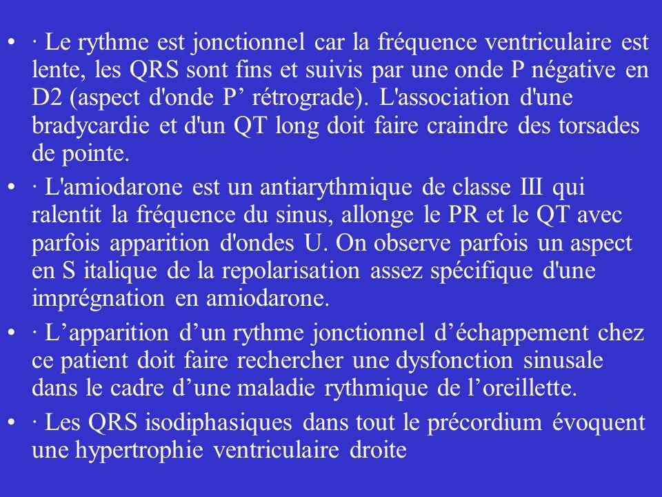 · Le rythme est jonctionnel car la fréquence ventriculaire est lente, les QRS sont fins et suivis par une onde P négative en D2 (aspect d'onde P rétro