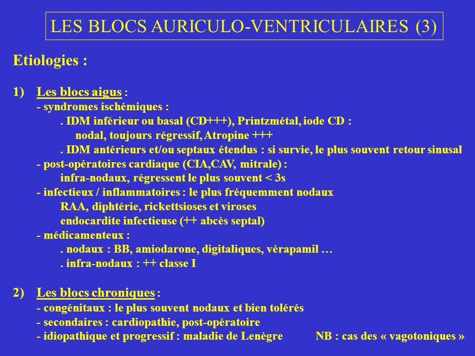 LES BLOCS AURICULO-VENTRICULAIRES (3) Etiologies : 1)Les blocs aigus : - syndromes ischémiques :. IDM inférieur ou basal (CD+++), Printzmétal, iode CD