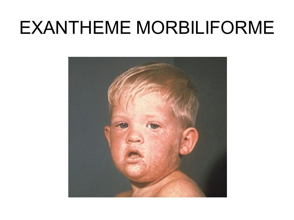 EXANTHEME MORBILIFORME