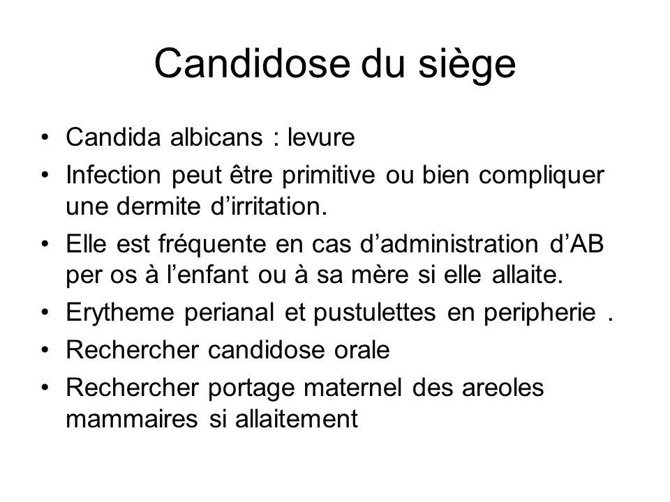 Candidose du siège Candida albicans : levure Infection peut être primitive ou bien compliquer une dermite dirritation. Elle est fréquente en cas dadmi