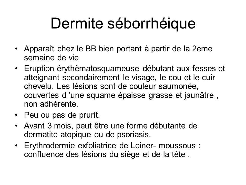 Dermite séborrhéique Apparaît chez le BB bien portant à partir de la 2eme semaine de vie Eruption érythèmatosquameuse débutant aux fesses et atteignan