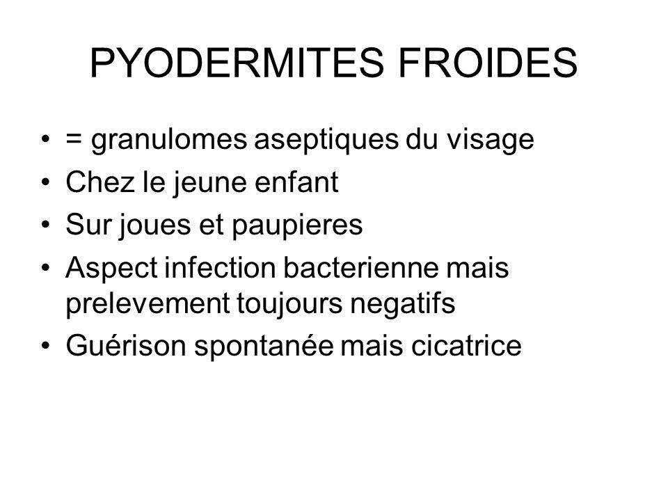 PYODERMITES FROIDES = granulomes aseptiques du visage Chez le jeune enfant Sur joues et paupieres Aspect infection bacterienne mais prelevement toujou