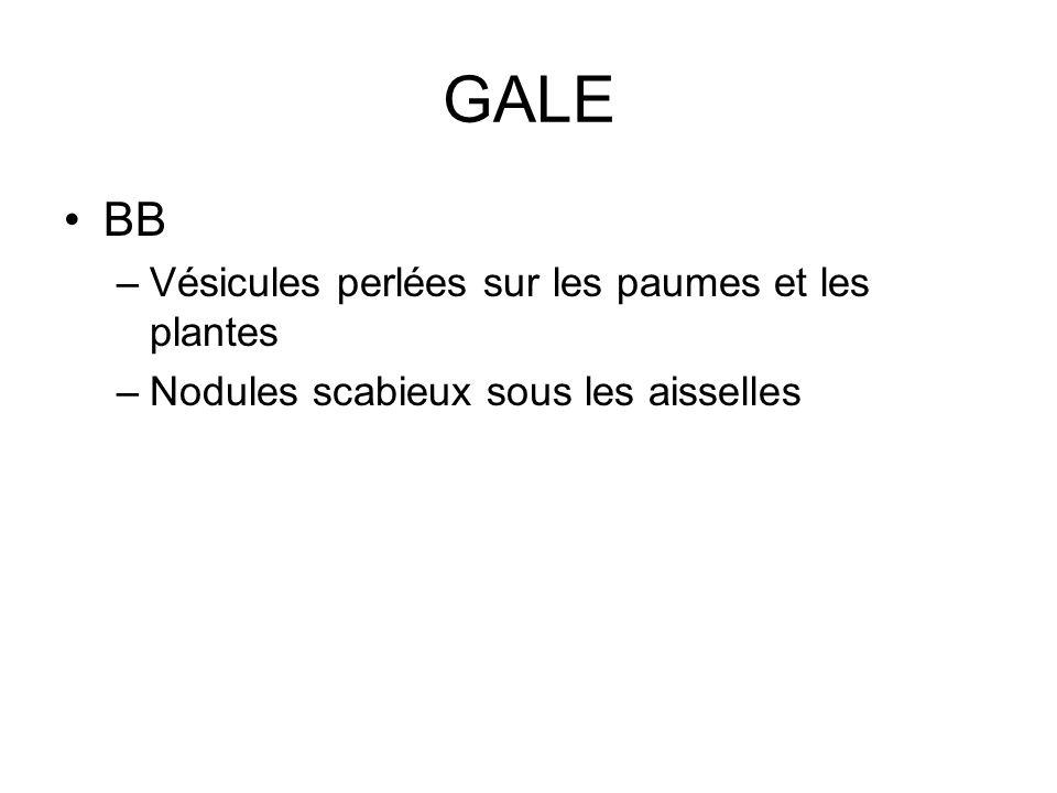 GALE BB –Vésicules perlées sur les paumes et les plantes –Nodules scabieux sous les aisselles