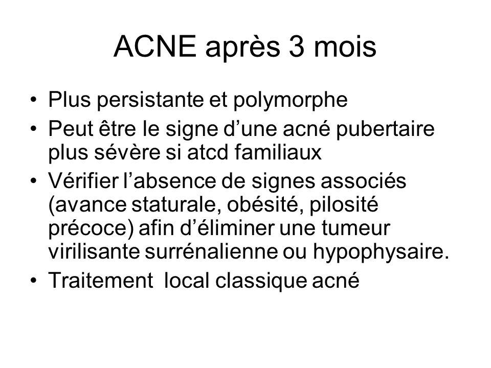 ACNE après 3 mois Plus persistante et polymorphe Peut être le signe dune acné pubertaire plus sévère si atcd familiaux Vérifier labsence de signes ass