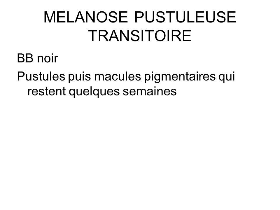 MELANOSE PUSTULEUSE TRANSITOIRE BB noir Pustules puis macules pigmentaires qui restent quelques semaines