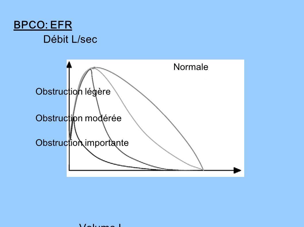 BPCO: EFR Débit L/sec Normale Obstruction légère Obstruction modérée Obstruction importante Volume L