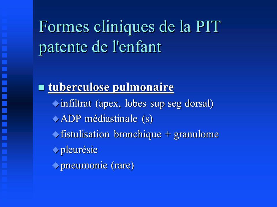 Formes cliniques de la PIT patente de l'enfant n tuberculose pulmonaire u infiltrat (apex, lobes sup seg dorsal) u ADP médiastinale (s) u fistulisatio