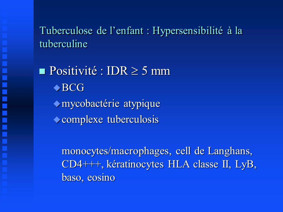 Tuberculose de lenfant : Hypersensibilité à la tuberculine n Positivité : IDR 5 mm u BCG u mycobactérie atypique u complexe tuberculosis monocytes/mac