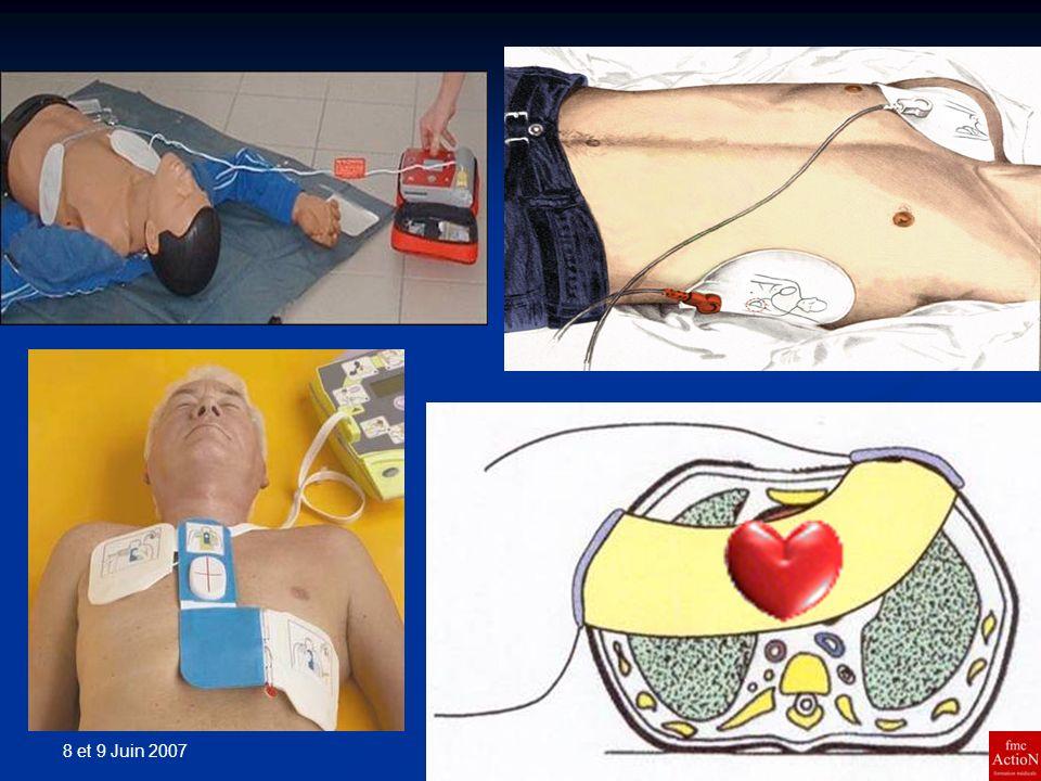 8 et 9 Juin 2007 28Séminaire DINAN Les ondes les plus simples sont monophasiques, le courant électrique circulant dans un seul sens à travers le thorax, de lélectrode positive vers lélectrode négative.