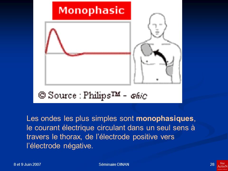8 et 9 Juin 2007 29Séminaire DINAN Dans les ondes bi phasiques, qui présentent une partie positive suivie d une partie négative, ce qui signifie que le courant circule successivement dans les 2 sens, d une électrode à l autre.