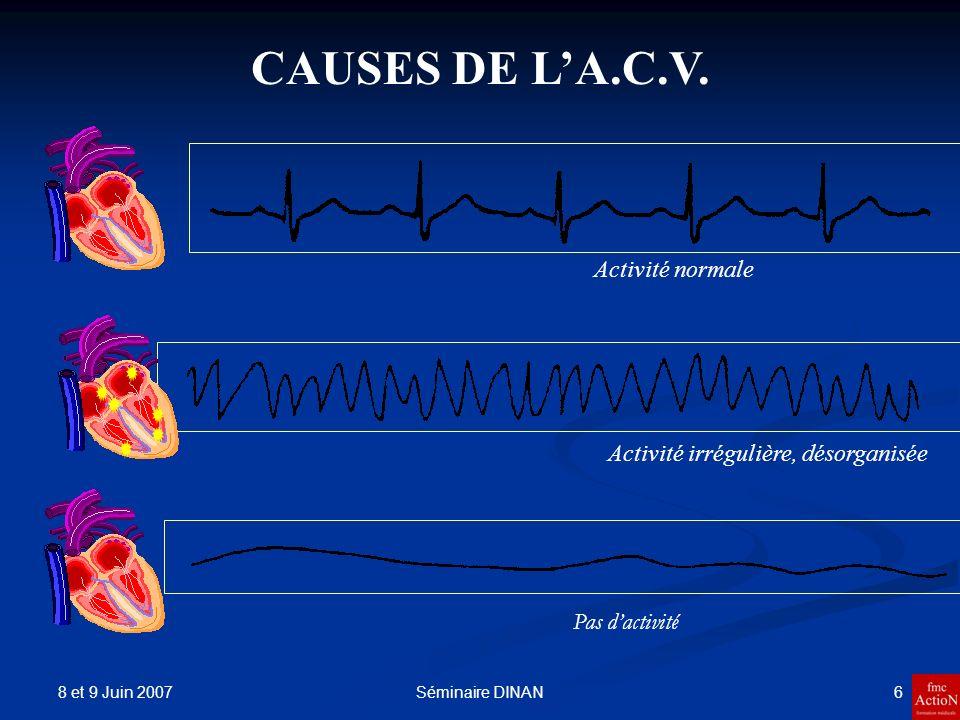 8 et 9 Juin 2007 7Séminaire DINAN Causes et mécanismes de larrêt cardio-ventilatoire Cœur sain Rythme cardiaque normal.