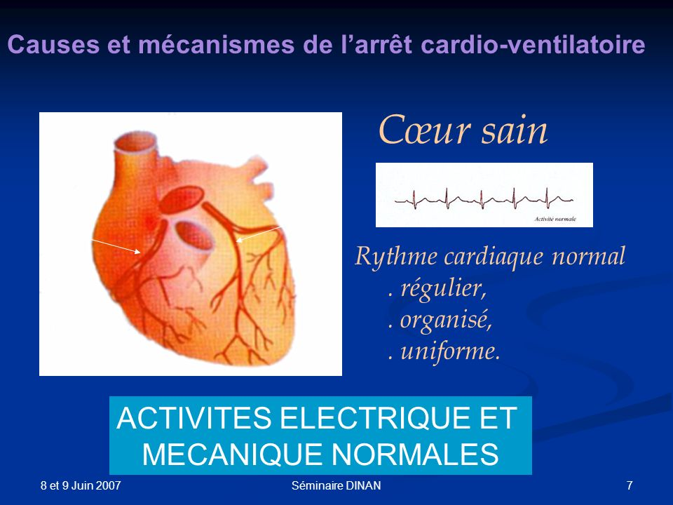 8 et 9 Juin 2007 7Séminaire DINAN Causes et mécanismes de larrêt cardio-ventilatoire Cœur sain Rythme cardiaque normal. régulier,. organisé,. uniforme