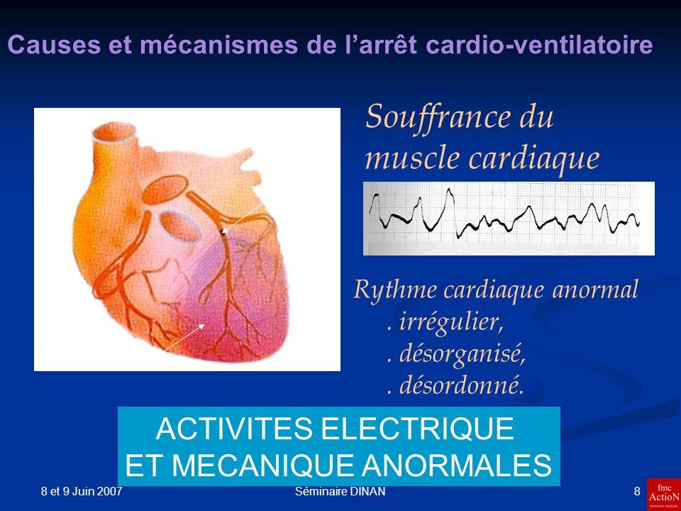 8 et 9 Juin 2007 8Séminaire DINAN Causes et mécanismes de larrêt cardio-ventilatoire Souffrance du muscle cardiaque Rythme cardiaque anormal. irréguli