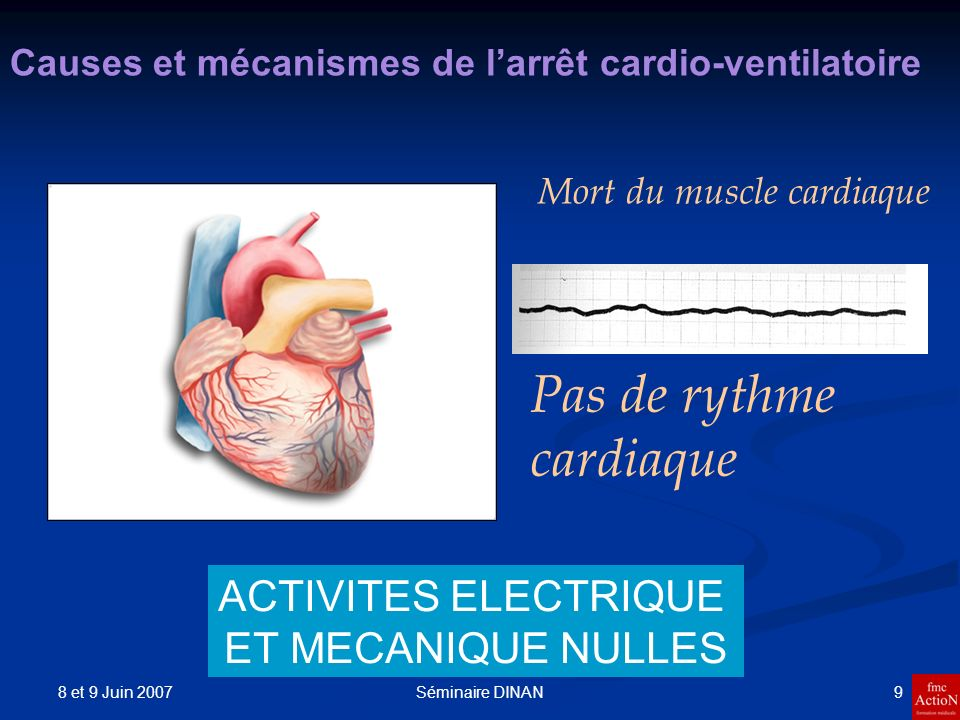 8 et 9 Juin 2007 9Séminaire DINAN Causes et mécanismes de larrêt cardio-ventilatoire Mort du muscle cardiaque Pas de rythme cardiaque ACTIVITES ELECTR