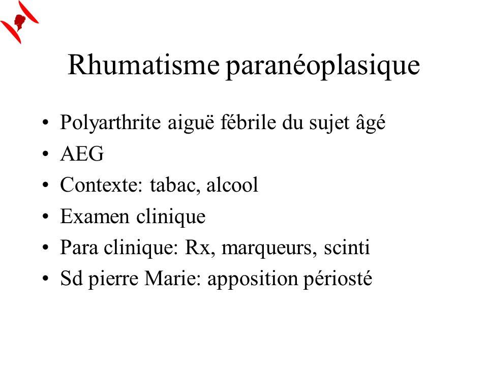 Rhumatisme paranéoplasique Polyarthrite aiguë fébrile du sujet âgé AEG Contexte: tabac, alcool Examen clinique Para clinique: Rx, marqueurs, scinti Sd