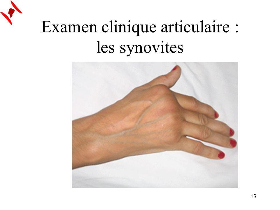 18 Examen clinique articulaire : les synovites