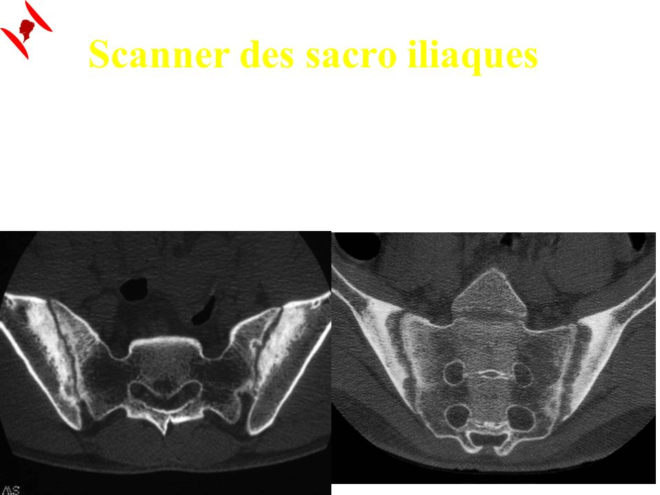 Scanner des sacro iliaques + sensible que les radios standards Meilleure analyse de la corticale / érosions - sensible que lIRM