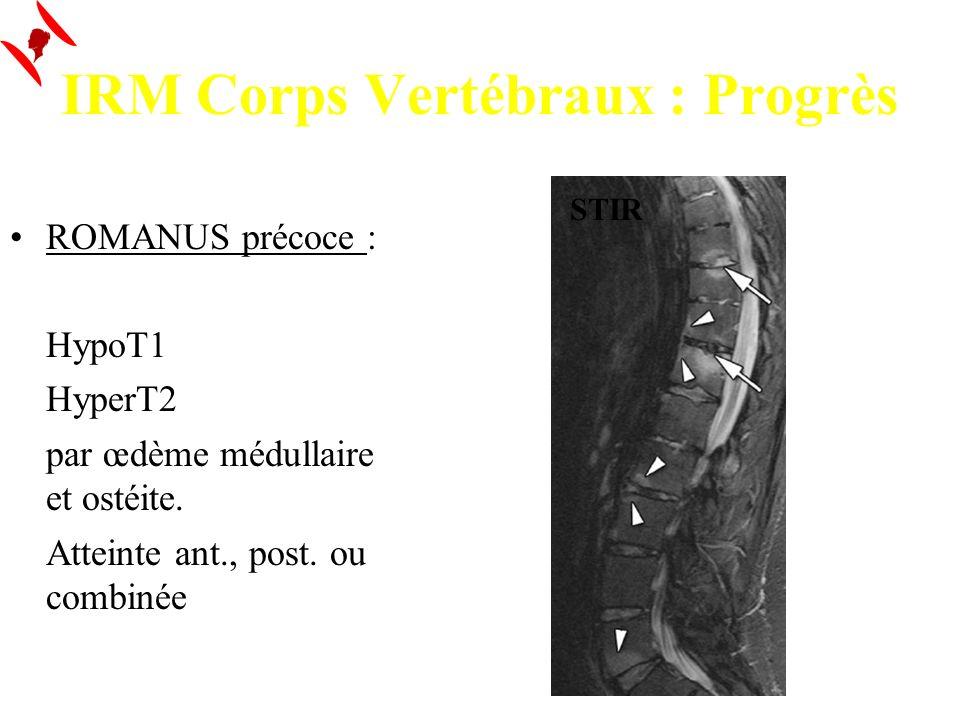 IRM Corps Vertébraux : Progrès ROMANUS précoce : HypoT1 HyperT2 par œdème médullaire et ostéite. Atteinte ant., post. ou combinée STIR