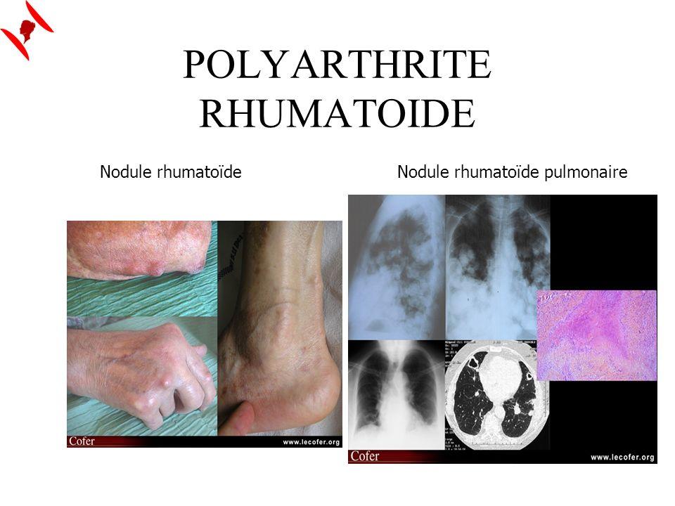 POLYARTHRITE RHUMATOIDE Nodule rhumatoïdeNodule rhumatoïde pulmonaire